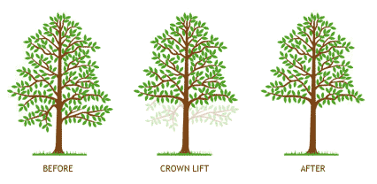 crown lift diagram